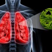 anti-tubercular-therapy